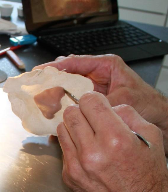 Mediprothèses-Notre-épithésiste-sculpte-une-prothèse-nasale