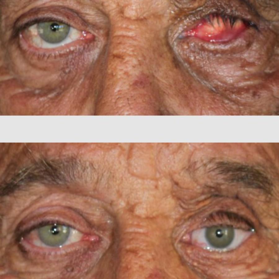 Mediprothèses-notre-oculariste-a-réalisé-cette-prothèse-oculaire-sur-une-cavité-orbitaire-irradiée