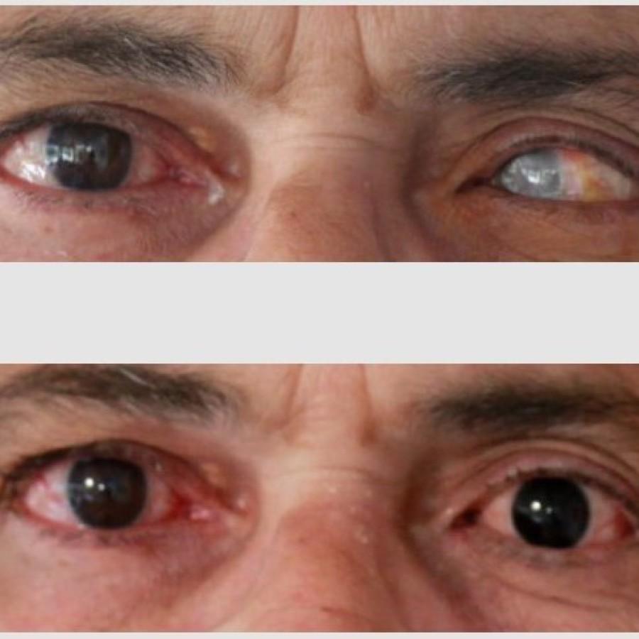 Mediprothèses-ce-patient-porte-un-verre-scléral