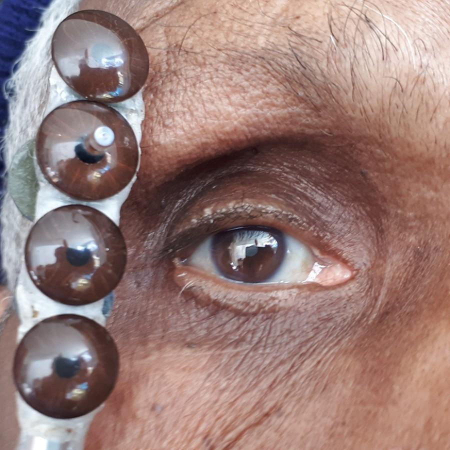 Mediprothèses-le-prothésiste-oculaire-choisit-la-couleur-d-iris-qui-se-rapproche-le-plus-possible-de-l-oeil-conservé