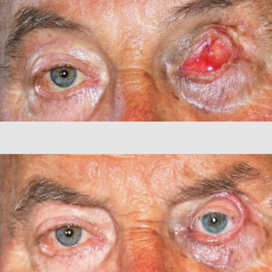 Mediprothèses-ce-patient-a-été-appareillé-avec-une-prothèse-oculo-palpébrale-suite-à-un-carcinome