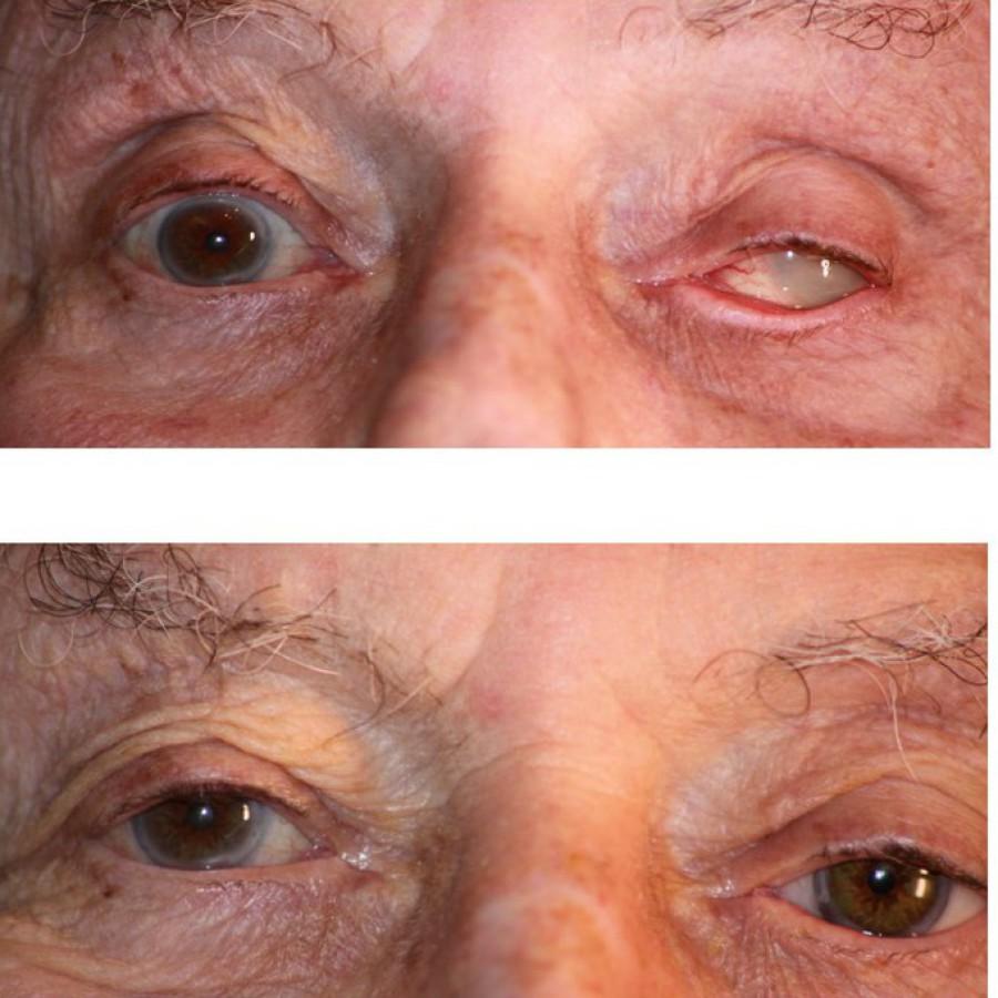 Mediprothèses-Ce-patient-porte-un-verre-scléral-cosmétique-reproduisant-le-gyrotoxon-de-l-oeil-existant