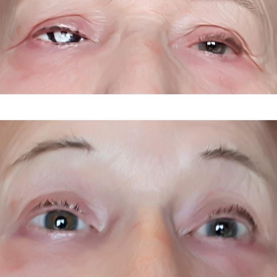 Mediprothèses-après-une-énucléation-cette-patiente-a-été-appareillée-avec-une-prothèse-oculaire-dans-sa-cavité-orbitaire-droite