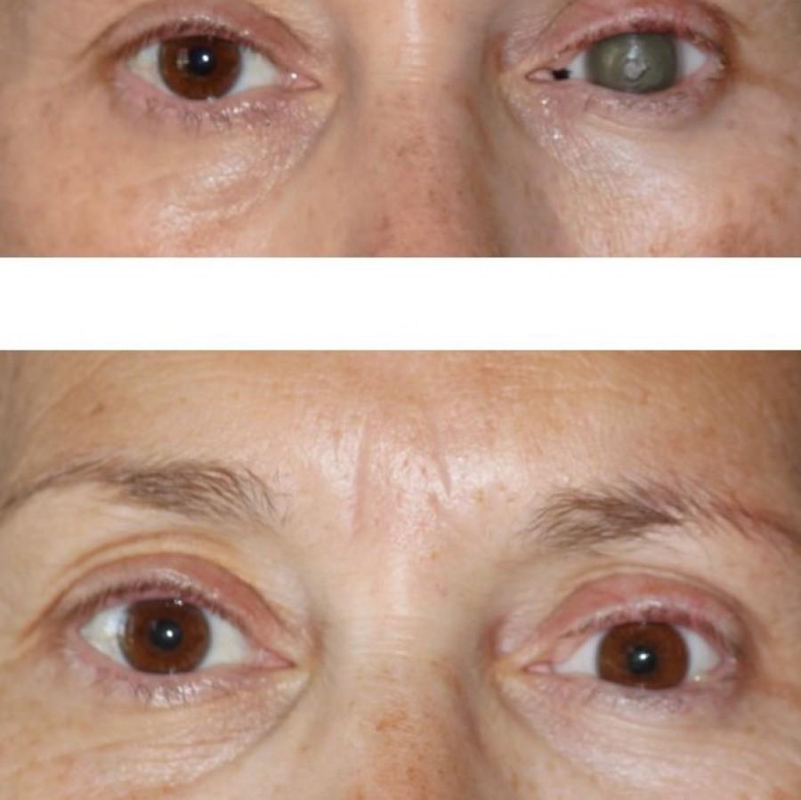 Mediprothèses-cette-patiente-porte-une-prothèse-oculaire-depuis-l-age-de-quatorze-ans-suite-à-une-microphtalmie-congénitale