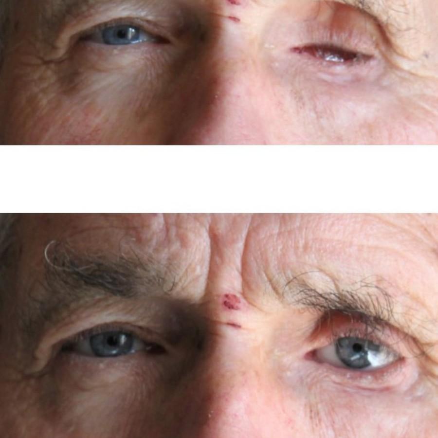 Mediprothèses-prothèse-oculaire-suite-à-un-ulcère-de-l-oeil