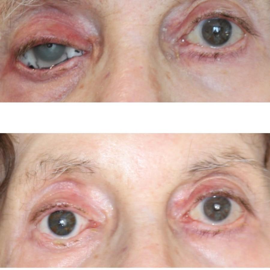 Mediprothèses-prothèse-oculaire-suite-à-un-glaucome-et-un-ulcère