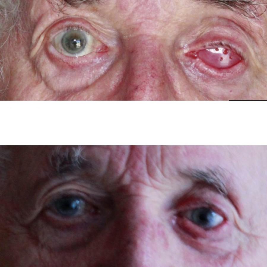 Mediprothèses-ce-patient-porte-une-prothèse-oculaire-suite-à-un-décollement-de-rétine
