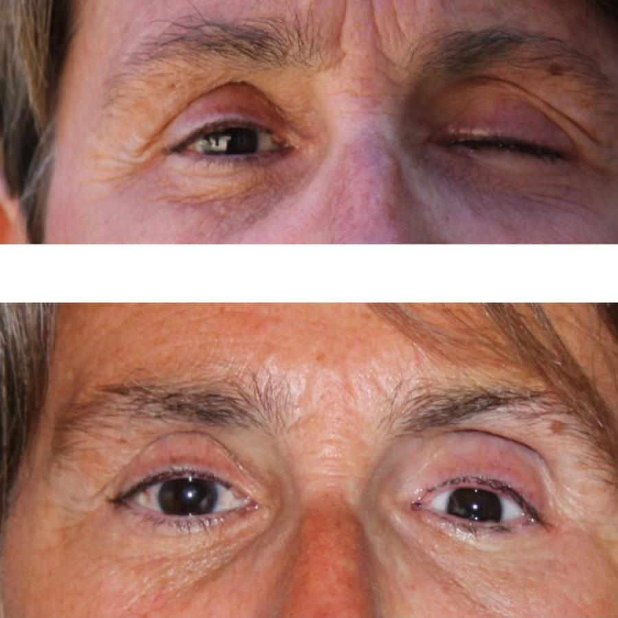 Mediprothèses-cette-prothèse-oculaire-a-été-adaptée-suite-à-un-mélanome