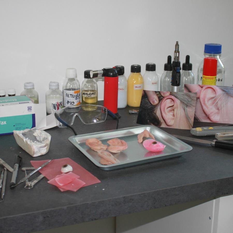 Mediprothèses-ici-l-epithésiste-réalise-les-prothèses-faciales